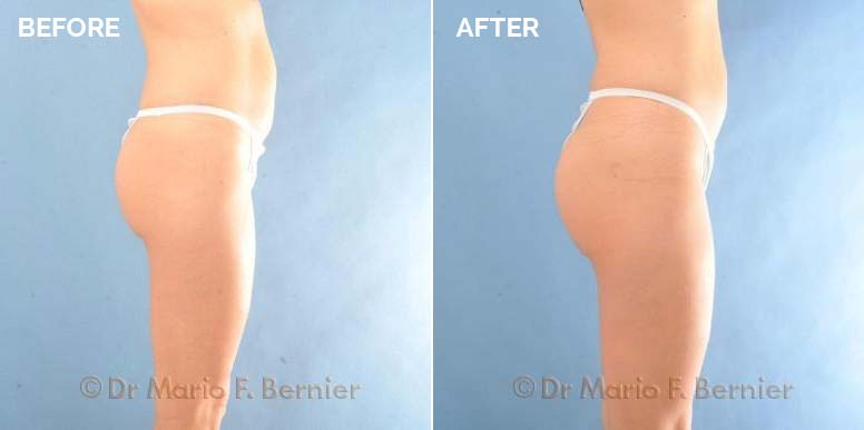 before and after photo of a butt lift
