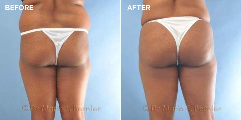 before and after buttock enhancement